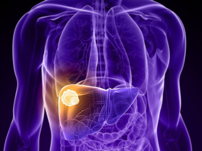 Liver cancer is usually found in already damaged cells.