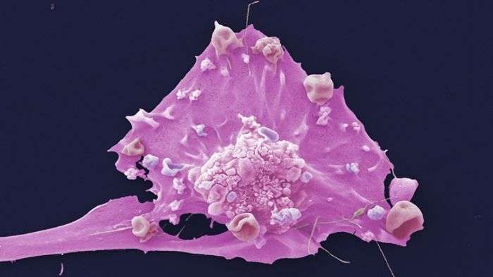 Researchers look for answers to metastasis by using rare tumor cells from the Brisbane Breast Bank.