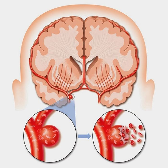 More work equals more likelihood of stroke.