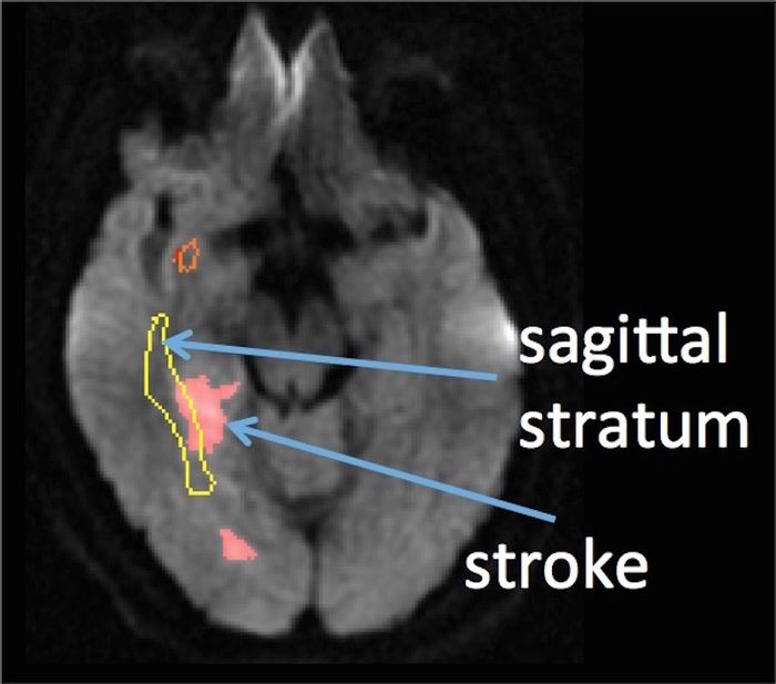 The area of the brain credited with recognizing sarcasm overlaps area impacted by stroke in test subjects.