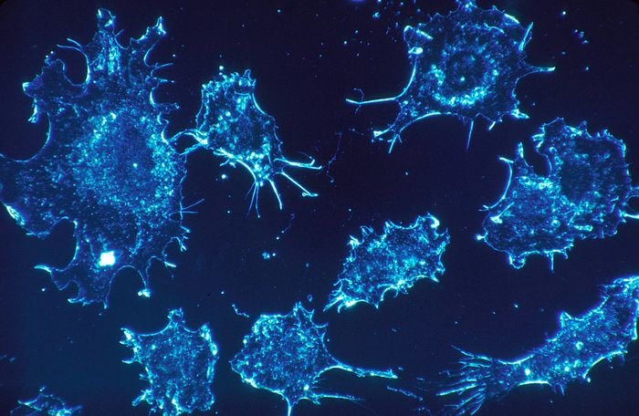 Cancer cells: people getting a different kind of cancer for the second time may have the same mutations or environmental factors.