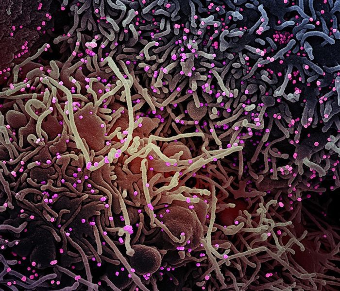 Colorized scanning electron micrograph of a VERO E6 cell (purple) exhibiting elongated cell projections and signs of apoptosis, after infection with SARS-COV-2 virus particles (pink), which were isolated from a patient sample. Image captured at the NIAID Integrated Research Facility (IRF) in Fort Detrick, Maryland. / Credit: NIAID