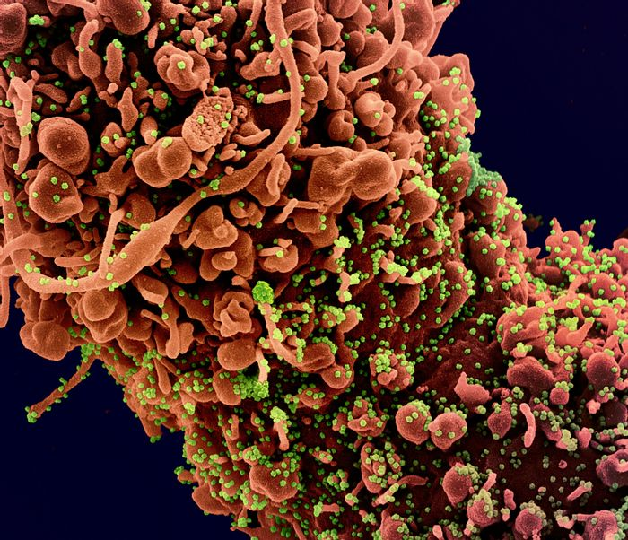 Colorized scanning electron micrograph of a cell showing morphological signs of apoptosis, infected with SARS-COV-2 virus particles (green), isolated from a patient sample. Image captured at the NIAID Integrated Research Facility (IRF) in Fort Detrick, Maryland. / Credit: NIAID