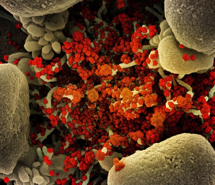 Colorized scanning electron micrograph of an apoptotic cell (tan) heavily infected with SARS-CoV-2 virus particles (orange), isolated from a patient sample. Image captured at the NIAID Integrated Research Facility (IRF) in Fort Detrick, Maryland. / Credit: NIAID
