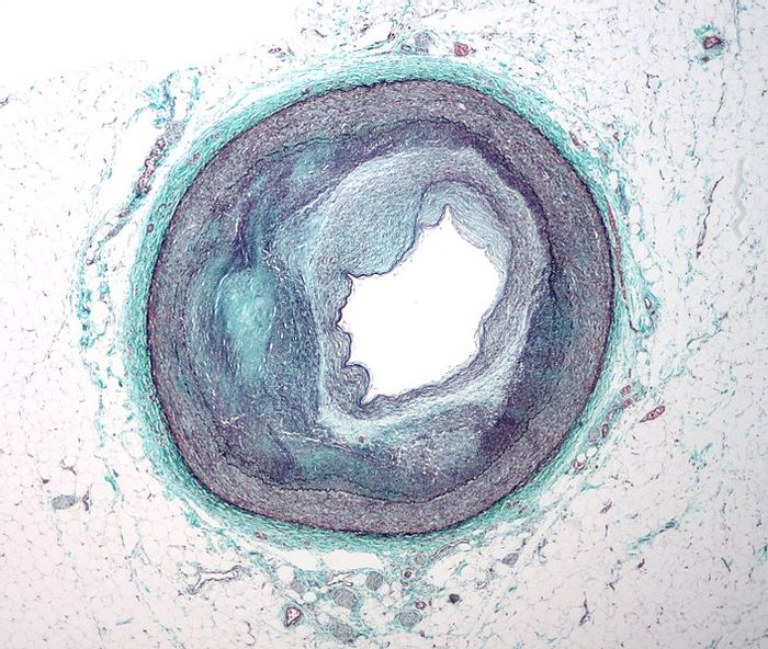 Micrograph of a coronary artery with complex atherosclerosis and narrowing. Credit: Nephron