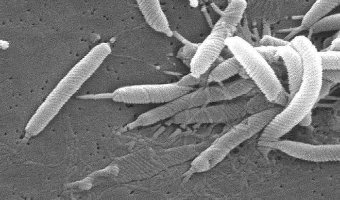 Scanning electron micrograph of Helicobacter bacteria. Credit: CDC