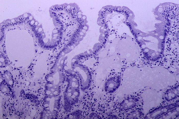Intestinal lymphangioma. Credit: Wikimedia User Pathos