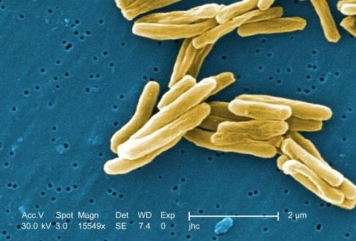 Under a magnification of 15549x, this colorized scanning electron micrograph (SEM) shows a number of Mycobacterium tuberculosis bacteria. / Credit: CDC/Janice Carr