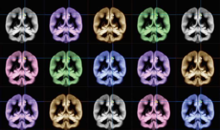 Kyoto University scientists have used MRI brain scans to find the location of happiness.