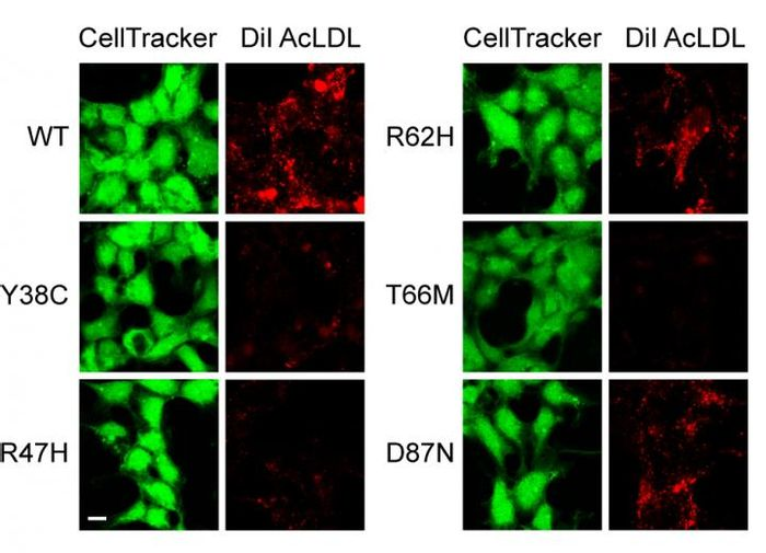 Confocal images of cells (green), and corresponding uptake of lipoproteins (red). Compared to cells with WT TREM2 and mutant TREM2 | Credit: Felix Yeh, PhD, et al.