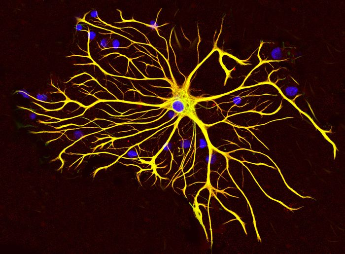 """""""This is an extraordinary mechanism in the healthy, mature brain that creates diversity of brain cells,"""" says Keith Murai. """"Now, our goal is to see how this mechanism is affected in different brain diseases."""""""