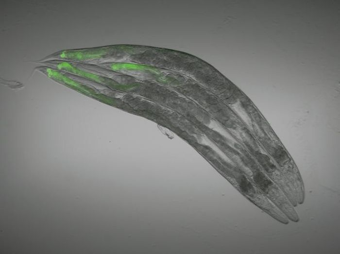 GFP glows when the nervous system is targeted by genetic modifications or drugs