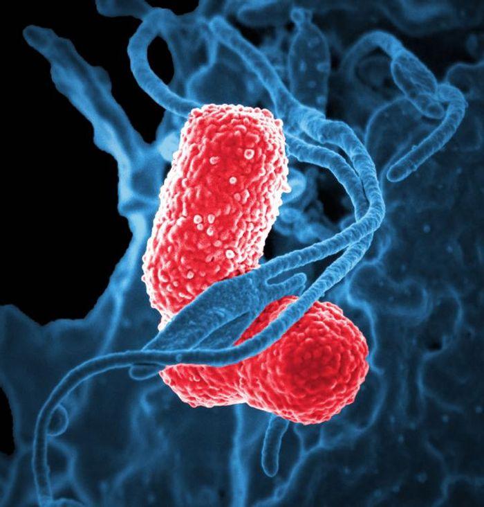 Klebsiella pneumoniae bacterium   Source: CDC Public Health Image Library
