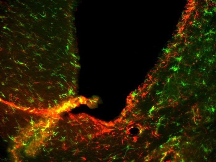 A microscope view of neurons (green) and immune cells (red) inside the brain of a mouse with a drug-resistant form of a disease closely related to MS. Credit: Mari Shinohara