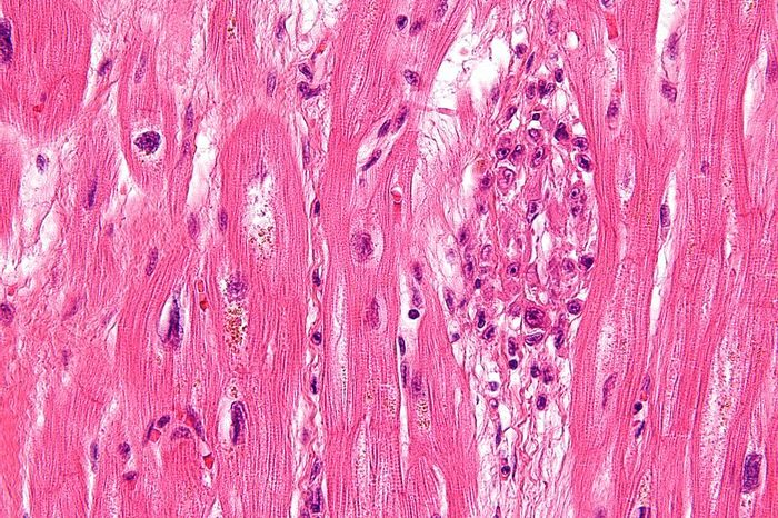 Very high magnification micrograph of rheumatic heart disease. Credit: Wikimedia User Nephron