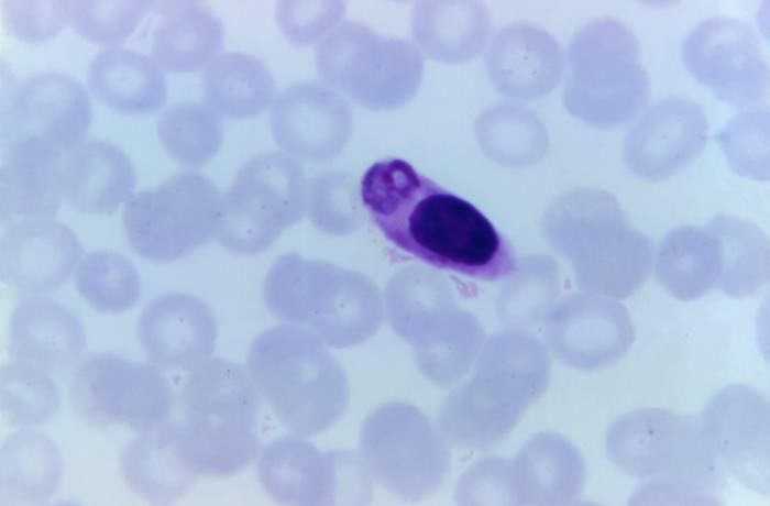 This photomicrograph of a blood smear, revealed a type of white blood cell that had ingested a malaria parasite. / Credit: CDC/ Dr. Mae Melvin