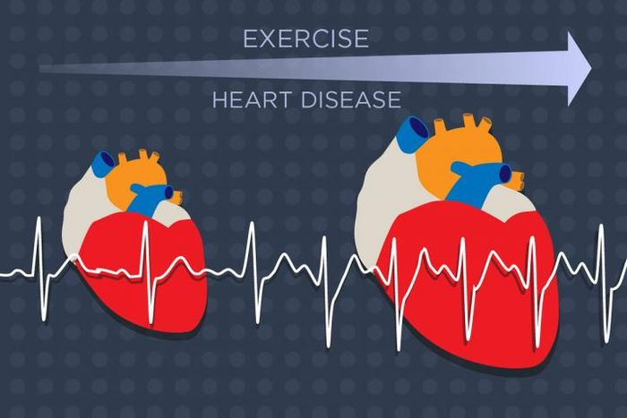 The heart enlarges in response to growing demands from exercise or heart disease. A new study identifies a key molecular player in this process. Credit: Julie McMahon