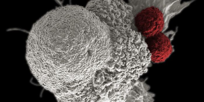 Cytotoxic T cells (red) attacking an oral squamous cancer cell (white) by Rita Elena Serda