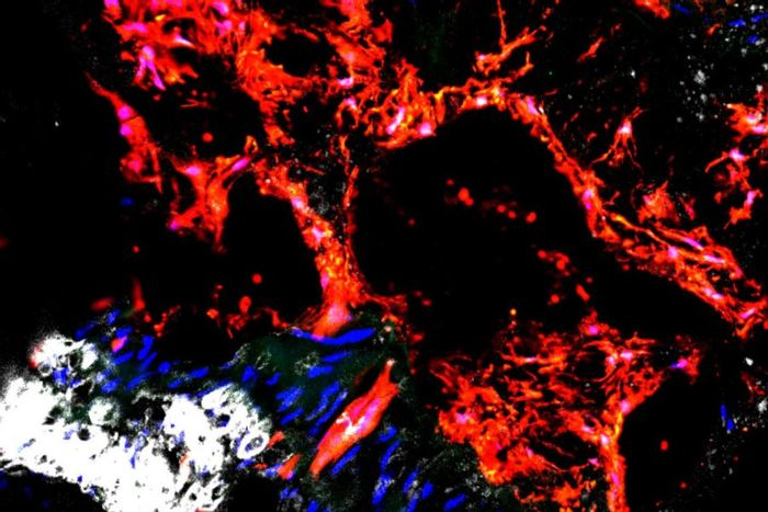 Gli1 cells (red) are responsible for depositing calcium in the arteries.