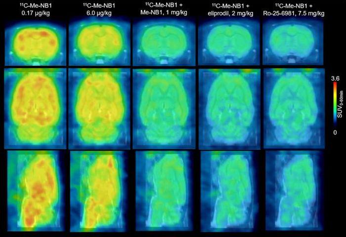 This figure shows rat brain 11C-Me-NB1 PET images (0-60 min) superimposed on an MRI template. Credit: SD Krämer et al., ETH Zurich, Zurich, Switzerland