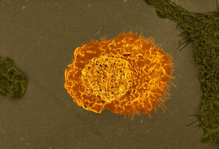 Colorized scanning electron micrograph of a macrophage. Source: NIAID