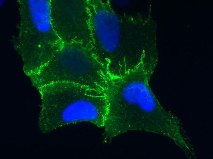 This cell from the lining of the lung is expressing the protein receptor PCDH1 (in blue), which is found on cell membranes. / Credit: Albert Einstein College of Medicine