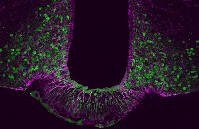 Tbx3 (green) plays a crucial role for the function and maintenance of satiety neurons in the brain. / Credit: modified from Quarta, C. & Fisette, A. et al. (Nature Metabolism)