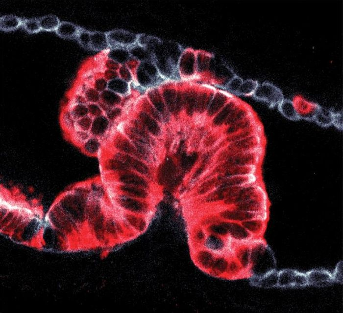 The image shows cancer growing inside the pancreatic duct of a mouse. It was obtained using a new technique to study 3D tissue samples, revealing that cancers can begin as 'endophytic' tumours which grow into the ducts (shown here) or 'exophytic' tumours growing outwards. / Credit: Hendrik Massal, Francis Crick Institute