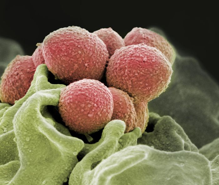 This is a scanning electron microscope image of Staphylococcus pyogenes bacteria (pink). / Credit: NIH National Institute of Allergy and Infectious Diseases (NIAID)
