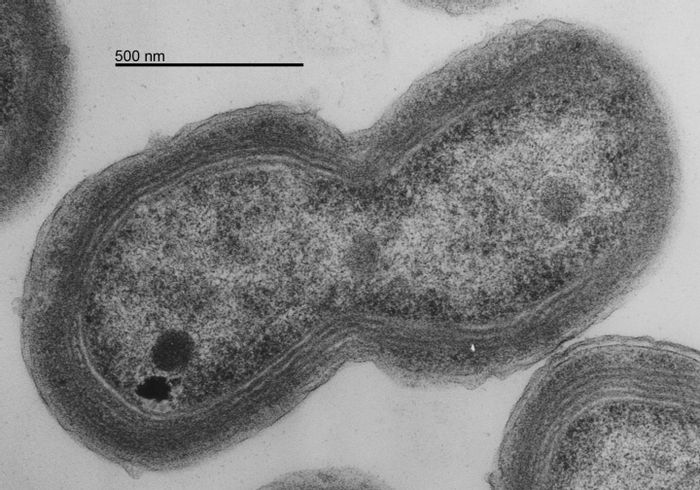 Credit: This is Prochlorococcus MED4 EM dividing. Taken by Luke Thompson (Chisholm Lab, MIT) and Nicki Watson (Whitehead Institute), 2006. TEM of MED4