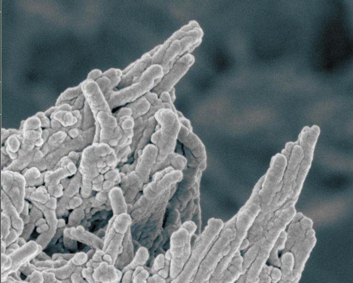 False color image of calcium phosphate deposits on bone. / Credit: Melinda Duer/Cathy Shanahan