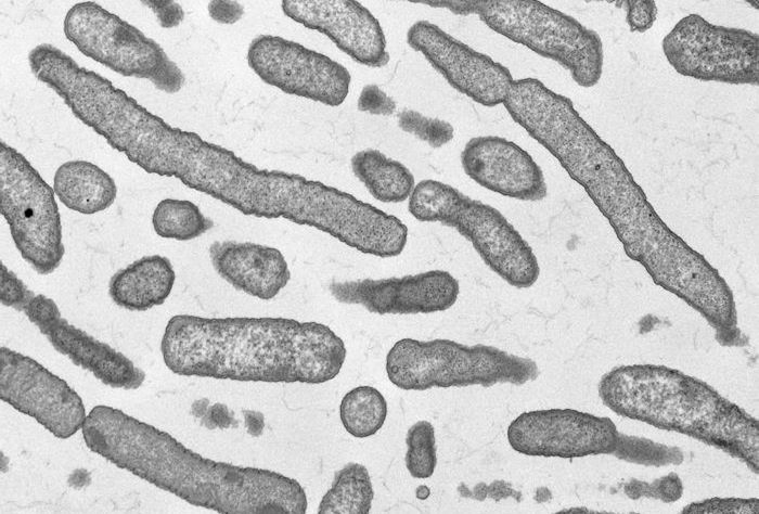 A TEM image depicting Elizabethkingia anophelis bacteria / Credit: CDC/ Cynthia Goldsmith and Melissa Bell