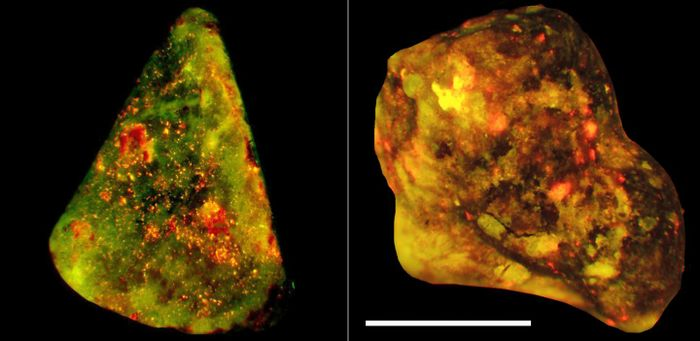 This figure shows neutrophil elastase (green) and DNA (red) co-localize on the surfaces of human gallstones (yellow). Scale bar 4mm. / Credit: Munoz et al./Immunity