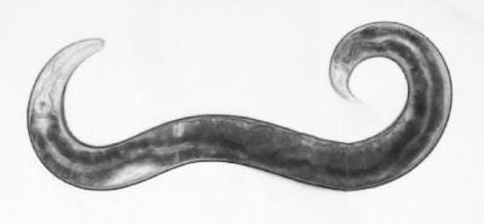 A nematode worm. / Credit: Erik Jorgensen, University of Utah.