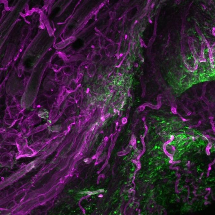Fascia cells (green) rising into dermal open wounds dragging their surrounding matrix (magenta). / Credit: © Helmholtz Zentrum München / Donovan Correa -Gallegos