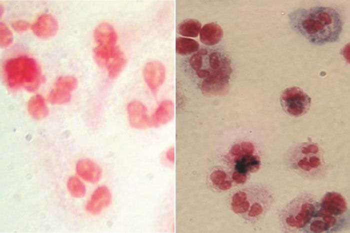 At left, image shows white blood cells (red) from one of the X-CGD clinical trial participants before gene therapy. At right, after gene therapy, white blood cells from the same patient show the presence of the chemicals (blue) needed to attack and destroy bacteria and fungus. Credit:  UCLA Broad Stem Cell Research Center/Nature Medicine