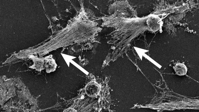 Part of the body's immune system, neutrophils detect bacteria and can expel their DNA (see arrows) to attack the bacteria with a gauzy web of DNA laced with toxic enzymes, called a NET. / Credit: Egeblad lab/CSHL