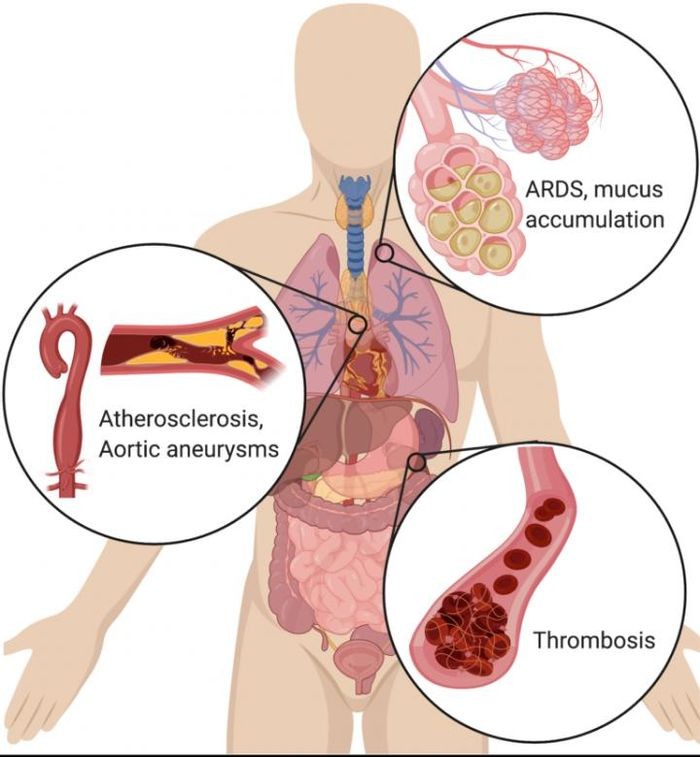 In the lungs, NETs drive the accumulation of mucus in cystic fibrosis patients' airways. NETs also drive acute respiratory distress syndrome (ARDS) after a variety of inducers, including influenza. In the vascular system, NETs drive atherosclerosis and aortic aneurysms, as well as thrombosis (particularly microthrombosis), with devastating effects on organ function. BioRender was used to generate the illustration. / Credit: CSHL