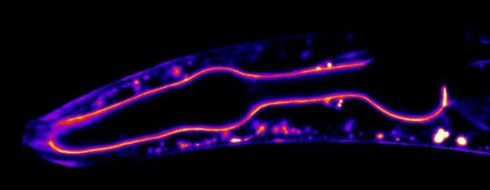 Duke University researchers used gene-editing techniques to tag and light up proteins in the basement membranes of living worms and watch them in action using time-lapse microscopy. / Credit: By Dan Keeley, UNC Chapel Hill