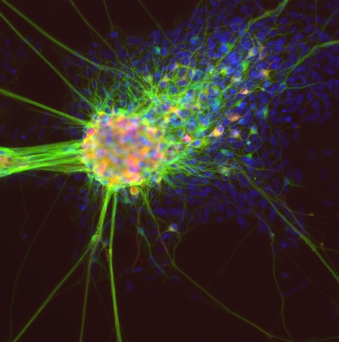 Differentiating neurons derived from induced pluripotent stem cells. / Credit: NCATS