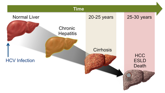 A Time Course Progression of a Chronic Hepatitis C Infection