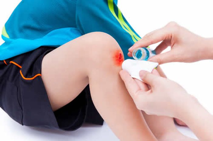 A topical treatment is applied to a wound. A team of researchers have demonstrated that a gene (Hsp60) is essential for wound healing. Photo credit: kdshutterman/shutterstock.com