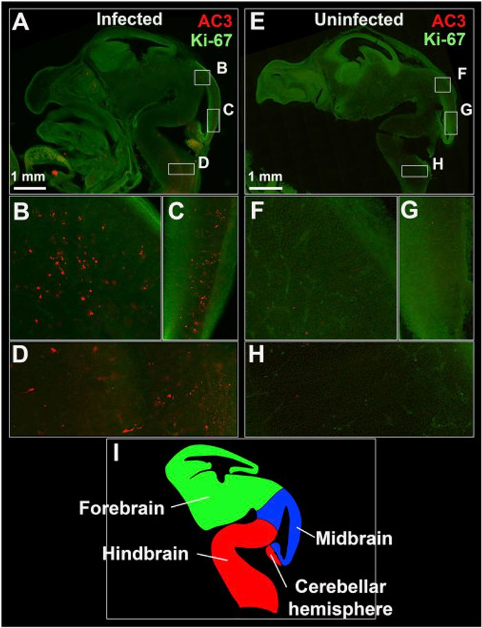 ZIKV Infection Is Associated with Evidence of Apoptosis in the Fetal Brain - (A, E) Sagittal images of representative infected (A) and uninfected (E) fetal heads showing high proliferation. (B-H) Lettered box regions (B-D and F-H) are magnified in corresponding panels below. Higher levels of apoptosis (red dots) can be seen in the midbrain (B-C) and hindbrain (D) of the infected Ifnar1+/? fetus. Alternatively, low levels of physiological apoptosis are seen in the absence of infection (F-H). (I) Diagram depicting the developing E13.5 fetal brain in sagittal view.