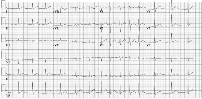 ECG results. Source: Cardio Networks