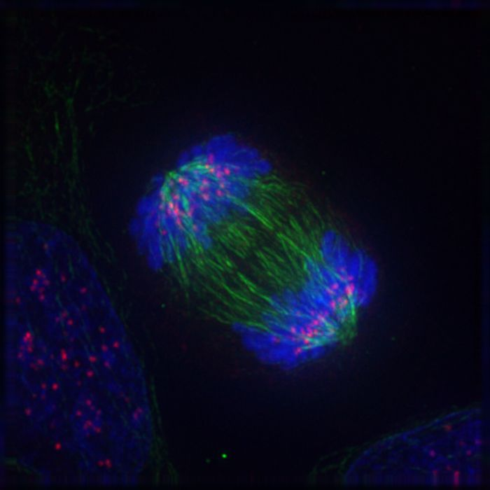 A cell undergoing mitosis / Credit: Wikimedia Commons/ Delta Vision Roy van Heesbeen