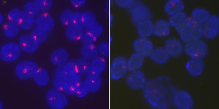 Researchers found that the protein YY1 brings Xist RNA back to the inactive X chromosome to maintain X chromosome inactivation in stimulated B cells. Activated, wild type B cells from female mice tightly localize Xist RNA at their inactive X chromosomes (left), whereas Xist RNA becomes dispersed throughout the entire nucleus when YY1 is deleted (right). Source: University of Pennsylvania