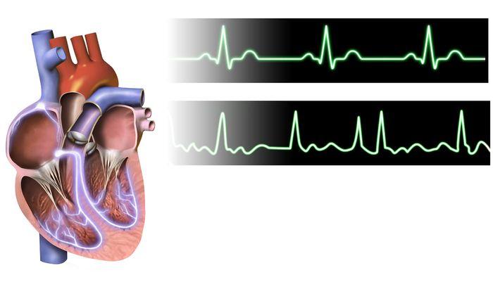Artistic rendering of atrial fibrillation. Credit: Bruce Blaus