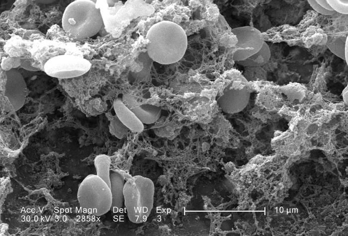 A scanning electron micrograph depicted a number of red blood cells found clotted together.