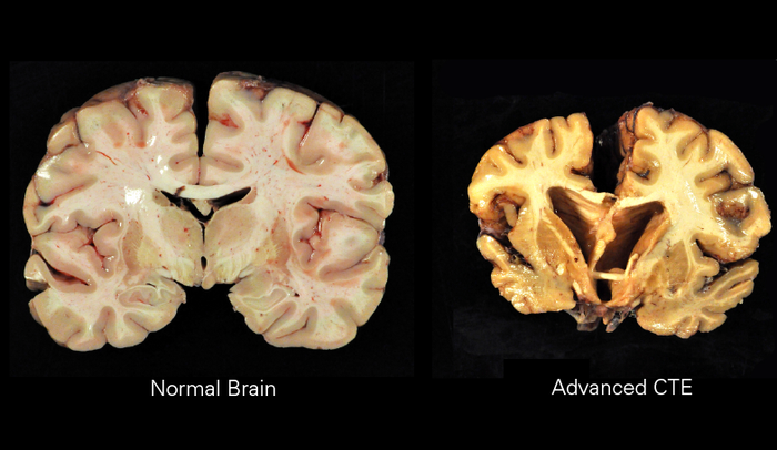 Image of chronic traumatic encephalopathy Date17 October 2014 Sourcehttp://www-tc.pbs.org/wgbh/pages/frontline/art/progs/concussions-cte/h.png AuthorBoston University Center for the Study of Traumatic Encephalopathy