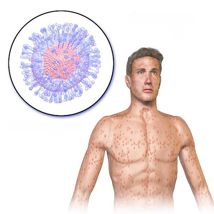 Chicken pox caused by the varicella zoster virus. Credit: BruceBlaus